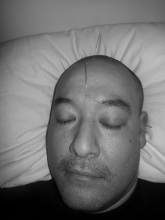 Sinus Health with Traditional Chinese Medicine
